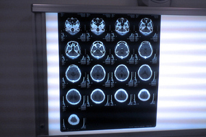 Flickr - ct brain scan