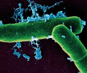 Anthrax bacteria microscope view--Kenyon College MicrobeWiki