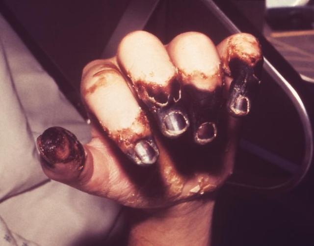 plague hand cdc
