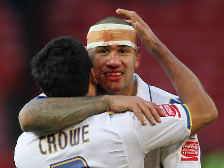 Leeds-v-man-utd-patrick-kisnorbo-bloodied-but_2403176_medium