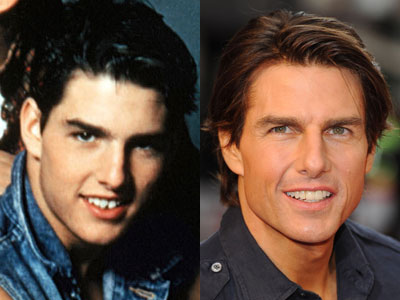 6420836_tomcruise_teeth_medium