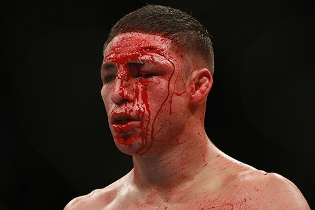 Diego-sanchez-ufc-107_medium