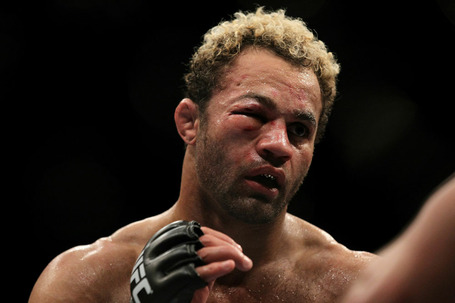 Koscheck-eye-closed_medium