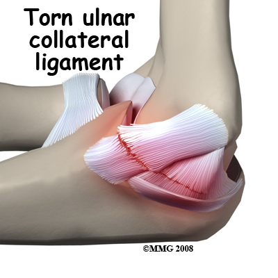 ulnar collateral ligament injury scenario treatment Physicians suspect ucl injury based on history and physical exam.