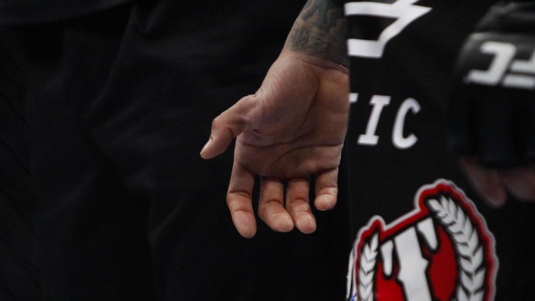... : Yancy Medeiros' Thumb Dislocation from UFC 159 - Bloody Elbow