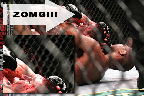 Just Bleed! FOX Sports names top 20 bloodiest fights in UFC